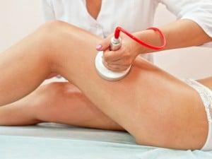 Cavitación: una alternativa a la liposucción