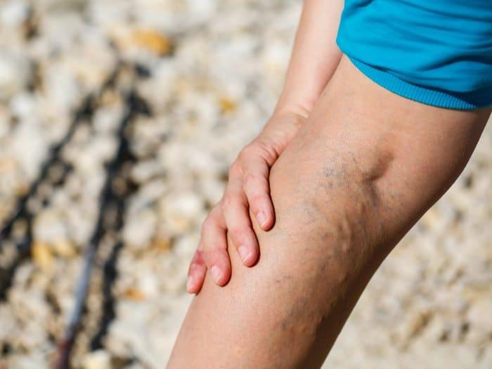 Mala circulación en las piernas