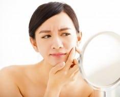 Tratamiento acne con láser