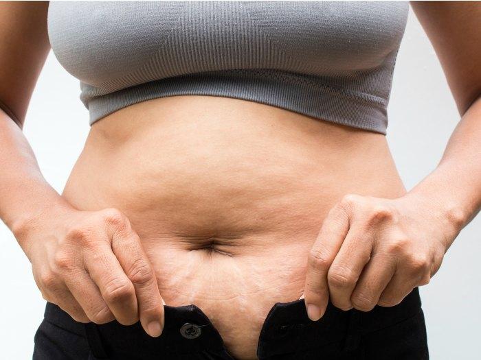 Celulitis en el abdomen
