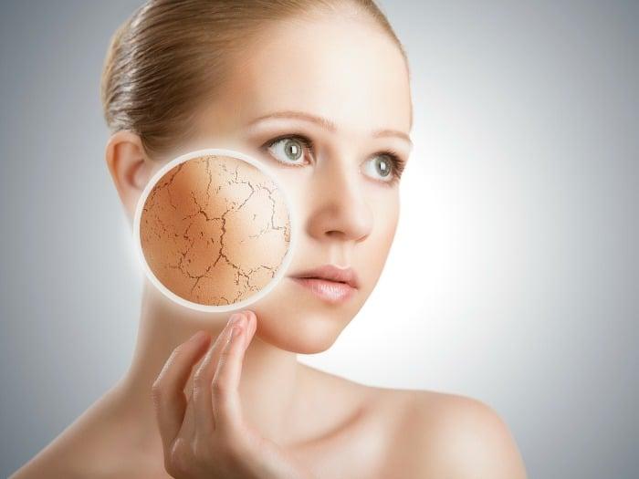 Soluciones y tratamientos para la piel seca
