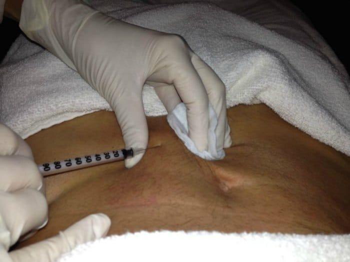 Mesoterapia en el hombre
