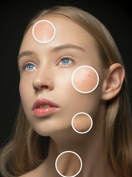 Zonas grasa de la piel del rostro