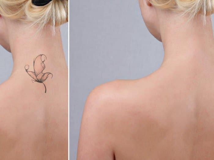 Eliminar un tatuaje con Láser Picoway