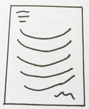 Estudio de la inclinación las Líneas concavas