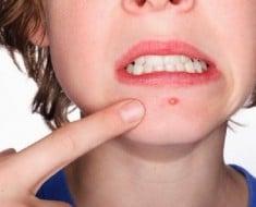 salud-como-controlar-acne-460x345-la