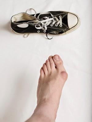 zapatillas juanetes