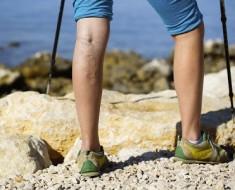 piernas-varices