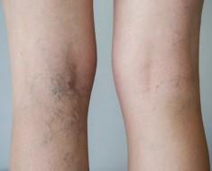 como puedo subir el acido urico enfermedad dela gota sintomas y tratamiento causas del acido urico en los pies