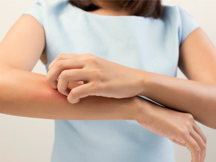 usos del desodorante, picor y comezón