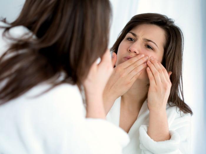usos del desodorante, eliminar espinillas