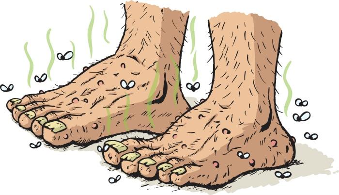 solucionar problemas de sudor: Olor pies