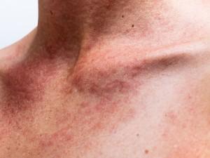Primeros auxilios ante una alergia alimentaria