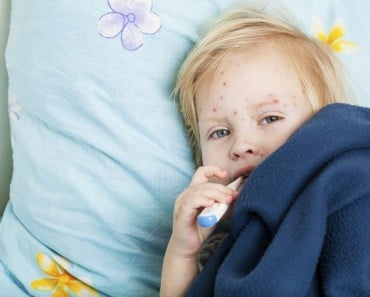 Remedios naturales para la varicela