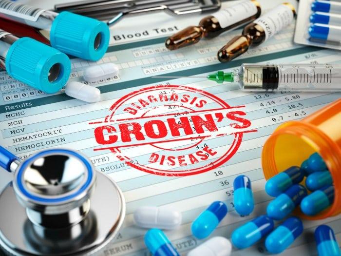 Qué es la enfermedad de Crohn