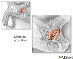 que-es-la-prostata