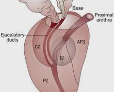 zonas-de-la-prostata