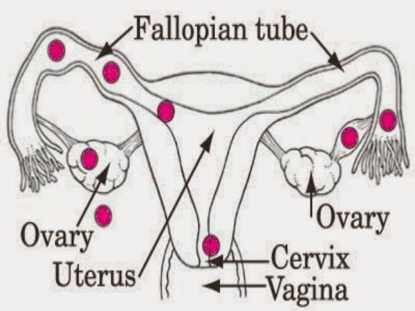 ¿Qué es un embarazo ectópico?