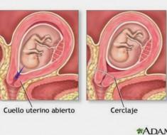 que-es-la-incompetencia-cervical