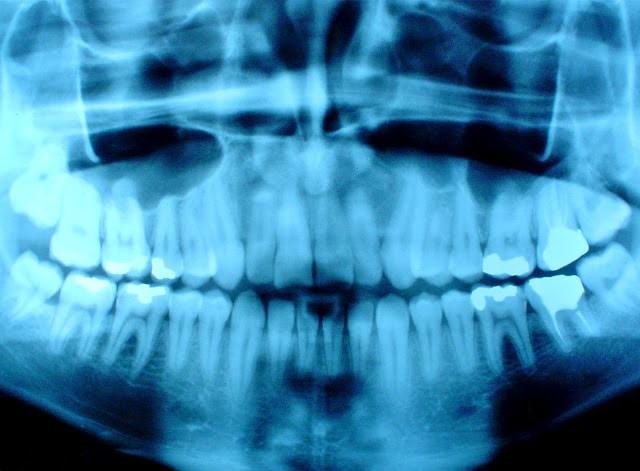 Radiografías dentales y tumor cerebral