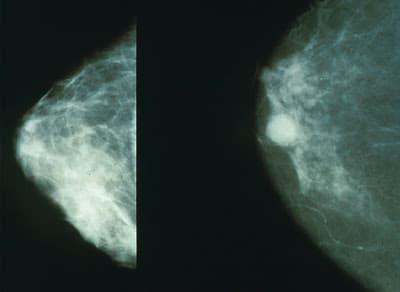 Beneficios de la mamografía