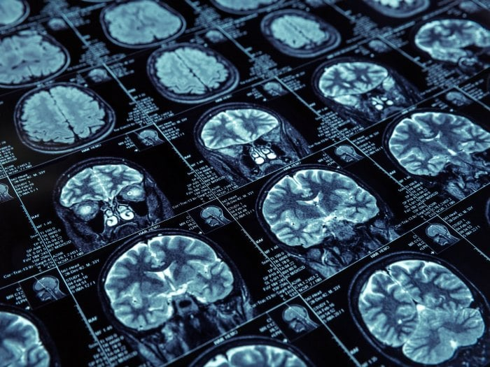 Detección precoz del Alzheimer