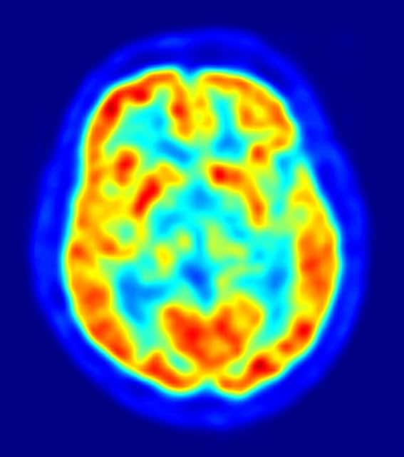 Otros síntomas del Parkinson