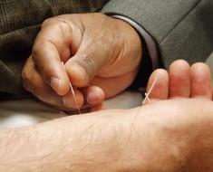 Acupunctura1