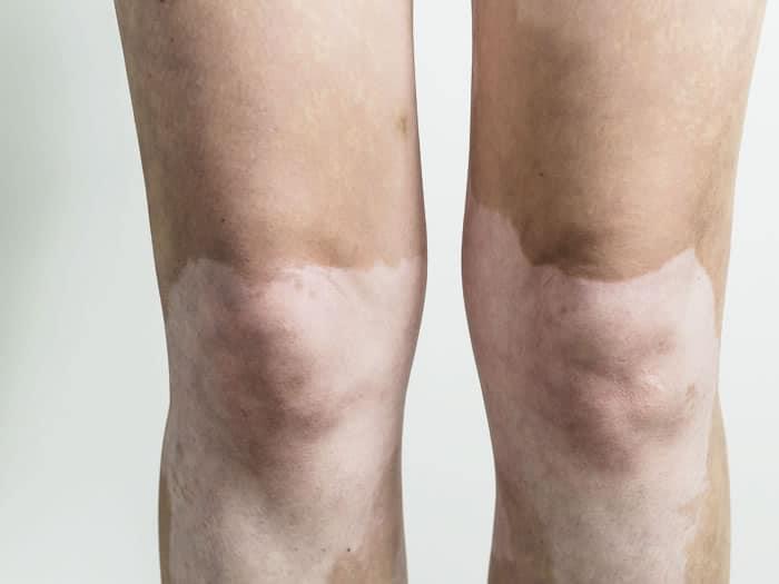 posible-cura-vitiligo