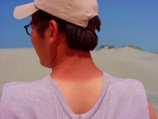 ¡Me he quemado con el sol!