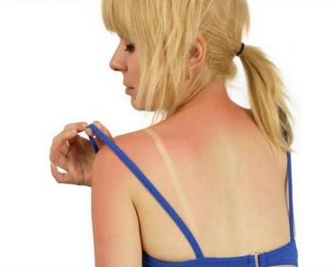 Cómo aliviar las quemaduras solares