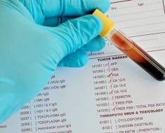 un-analisis-de-sangre-podria-prevenir-el-cancer-de-mama1