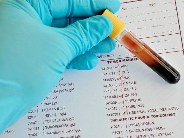 Un análisis de sangre podría prevenir el cáncer de mama