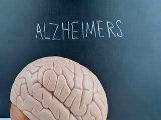 Detección temprana Alzheimer