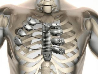 prótesis del esternón y de las costillas 3D