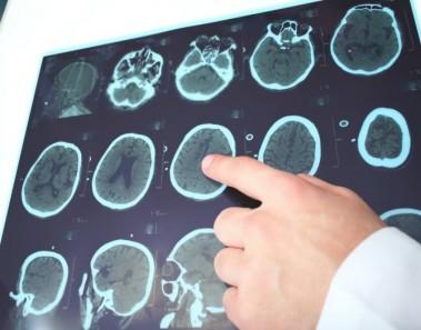 epilepsia-euroresidentes
