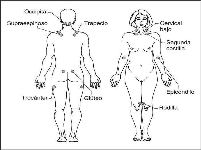 puntos-dolorosos-fibromialgia-euroresidentes