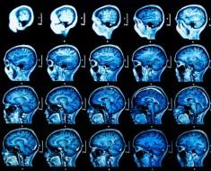 esclerosis-lateral-amiotrofica-euroresidentes