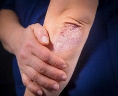 Cosas que deberías saber sobre la psoriasis