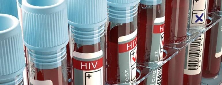 Cómo saber si tengo el sida