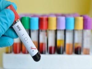 Más cerca que nunca de una vacuna contra el VIH