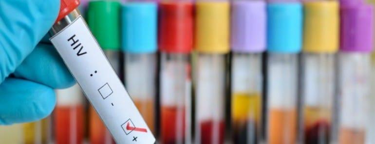 Más cerca de una cura para el VIH