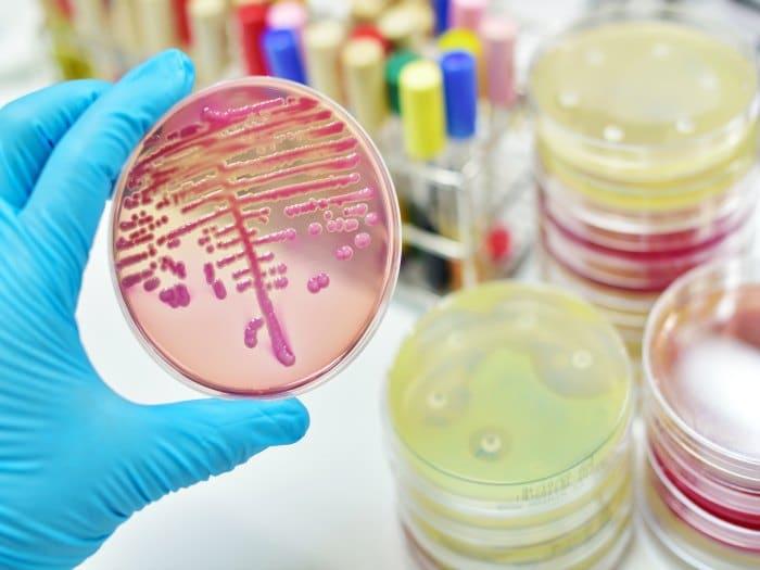 Bacterias resistentes son una amenaza para la salud