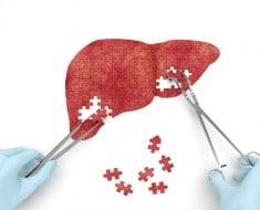 ¿Sabes qué es un hígado graso?