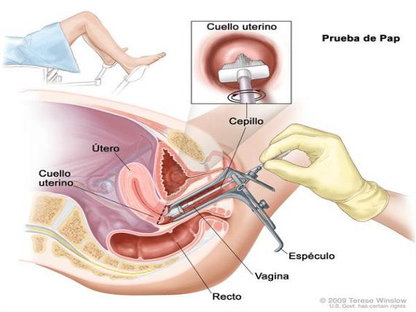 ¿Cómo se detecta el cáncer de cuello de útero?