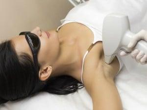 ¿Puede la depilación láser causar cáncer?