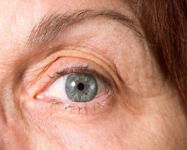 ¿Sabes qué es el síndrome del ojo seco?