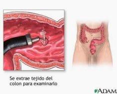 Qué son los pólipos intestinales