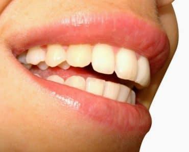¿Cómo afecta la menopausia a los dientes y a las encías?