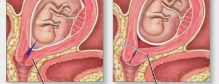 ¿Qué es la incompetencia cervical?